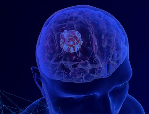 Tumor cerebral: principais tipos e tratamentos atuais